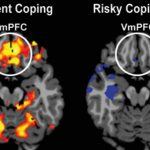 Yale Researchers Find the Part of the Brain That Determines How Well You Handle Stress